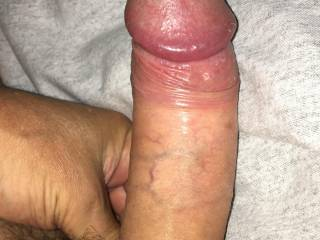Foreskin pulled back to show that head